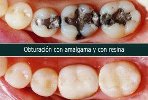 Obturación con amalgama y resina