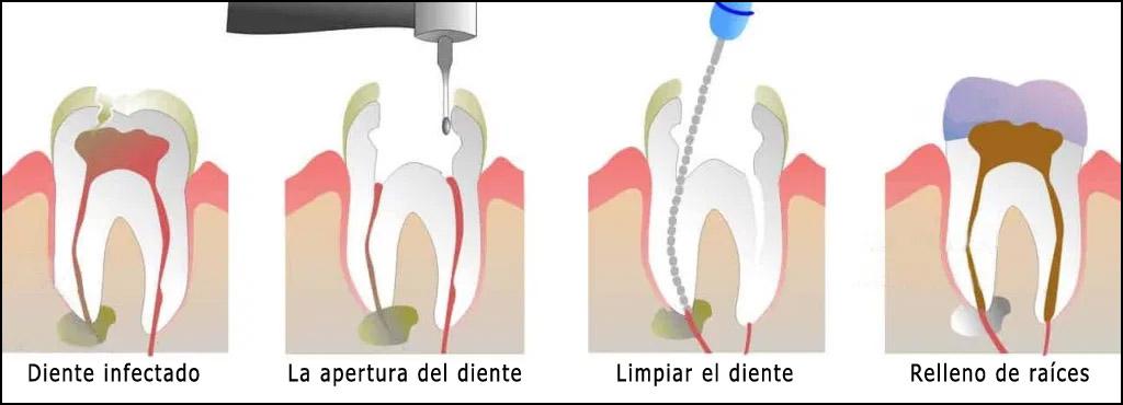 canal-procedimiento