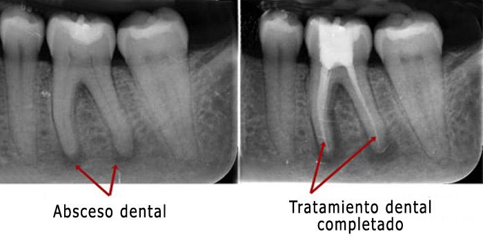 Cómo determina el odontologo si es necesario un tratamiento de conducto