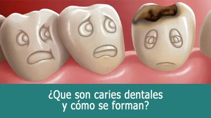 Que son caries dentales