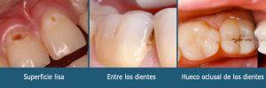 Dónde ocurre la caries dental