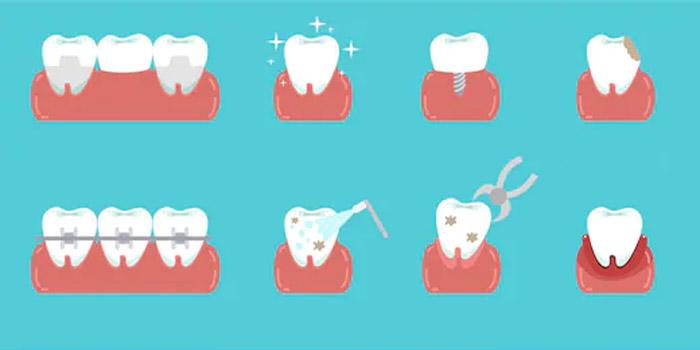 Consulta dental tratamiento Cartagena