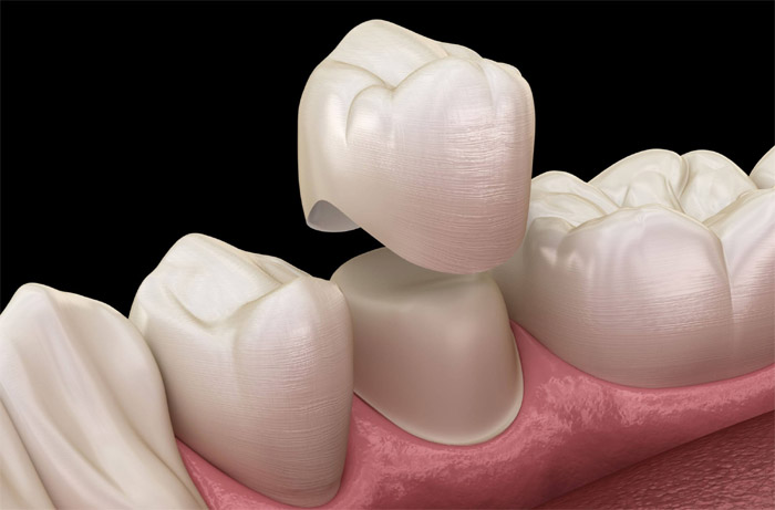 Corona dental cementada