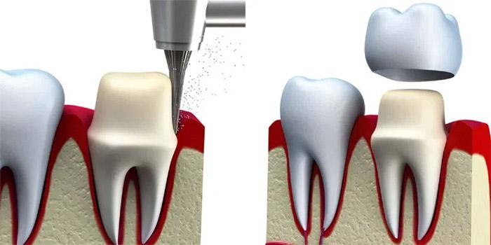 Cómo colocar una corona dental