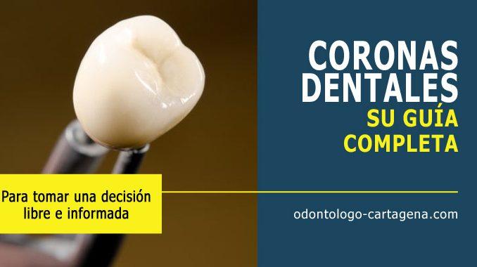Corona dental en Cartagena