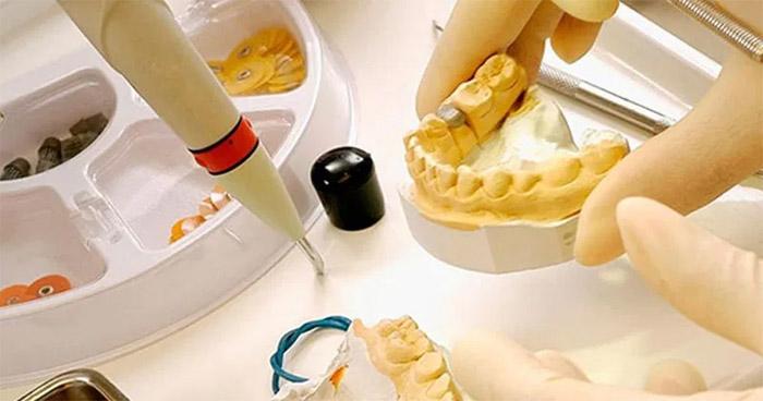 Fabricación en laboratorio de la corona dental