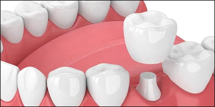 Que es una corona dental