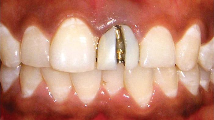 Cómo reemplazar una corona dental