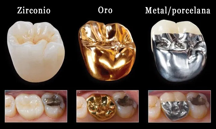 Materiales coronas dentales
