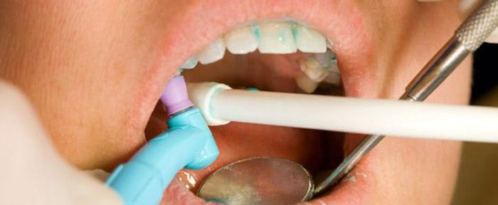 dental-limpieza