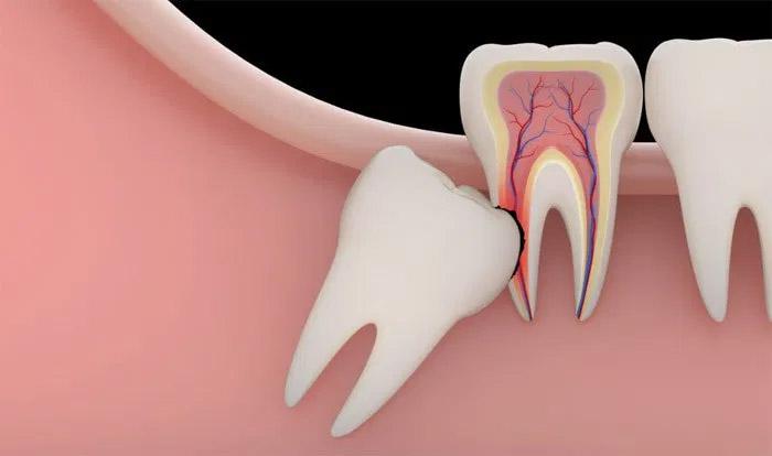 Un diente impactado