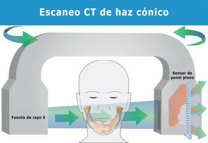 Escano CT haz conico