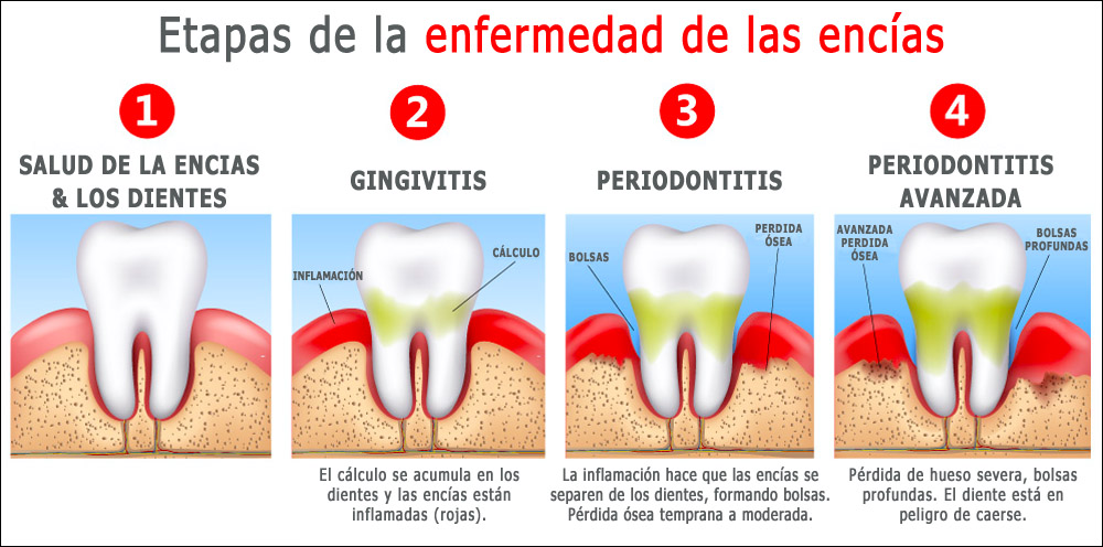 Etapas de infemedad dientes