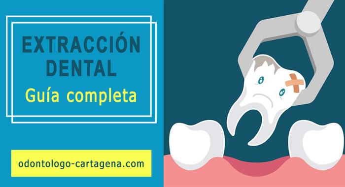 extraccion-dental-cartagena-1