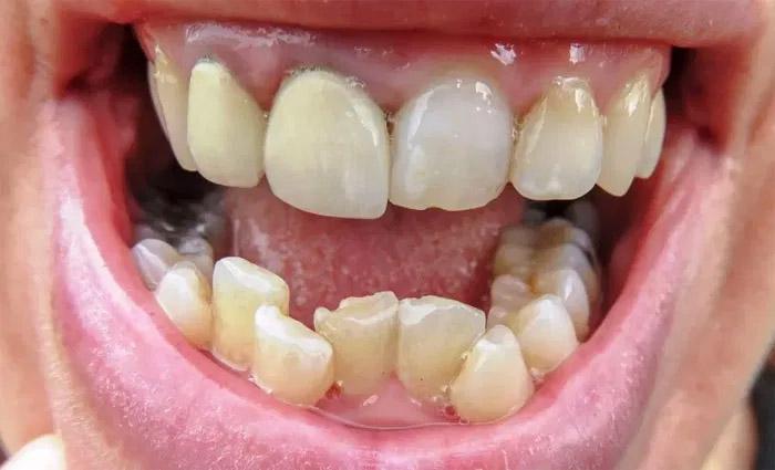 dientes apretados