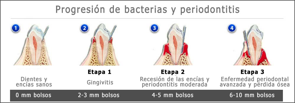 gingivitis-bacterias