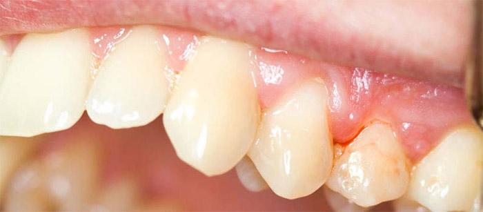 gingivitis-enfermeda