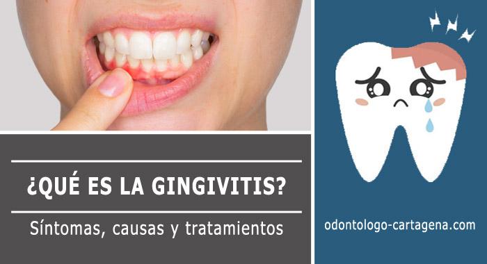 gingivitis-que-es