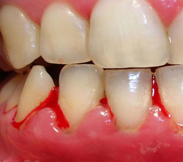 gingivitis-sintomas