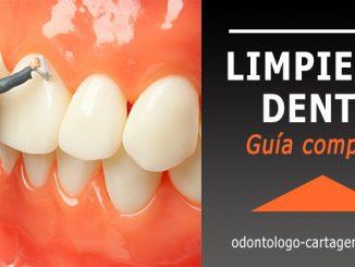 Limpieza dental Cartagena Colombia