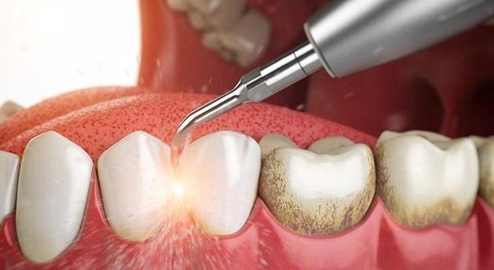 Porque una limpieza dental