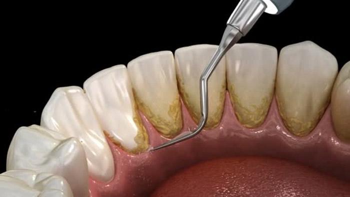 Limpieza dental ultrasonidos