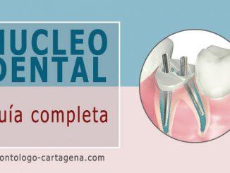 Núcleo dental