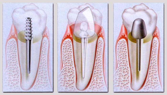 Nucleo dental Cartagena