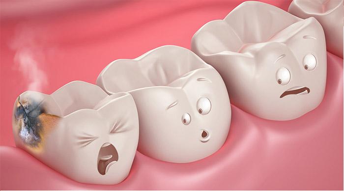 Obturación dental odontologo