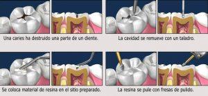 Pasos obturación dental