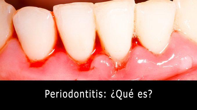 Periodontitis que es