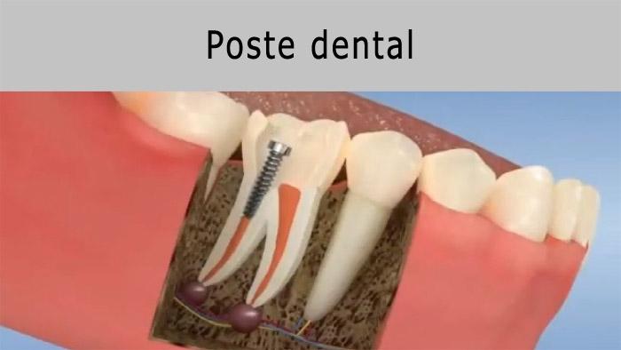 Perno dental