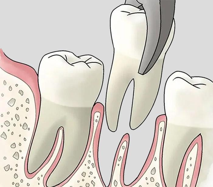 Por qué extraer un diente