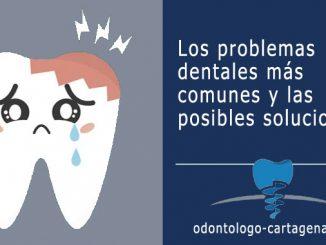 Problemas dentales y soluciones