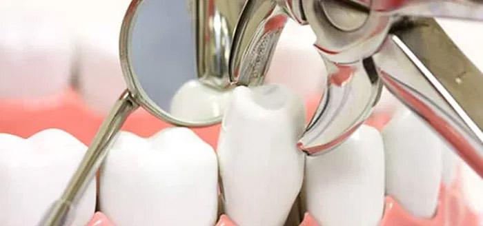 Que es una extraccion dental