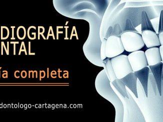 Radiografia dental en Cartagena