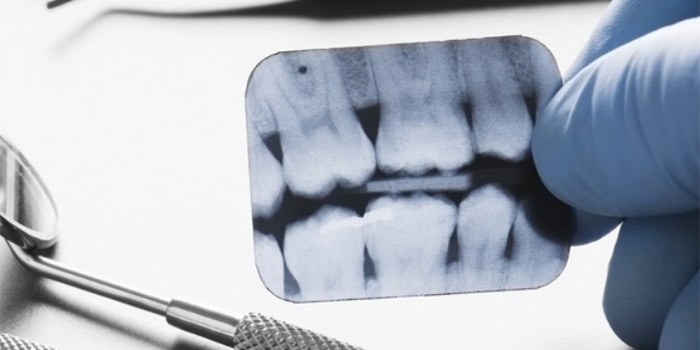 Radiografia dental Colombia