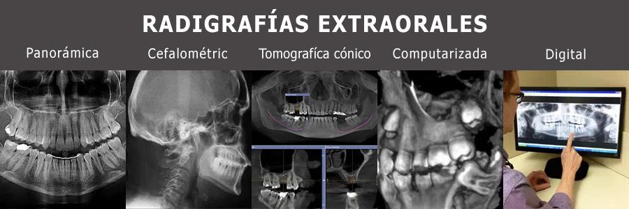 Radiografias extraorales
