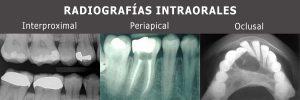 Radiografias intraorales