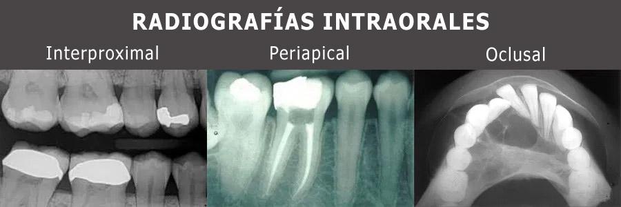 radiografias-intraorales
