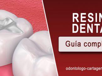 Resina dental Cartagena Coombia