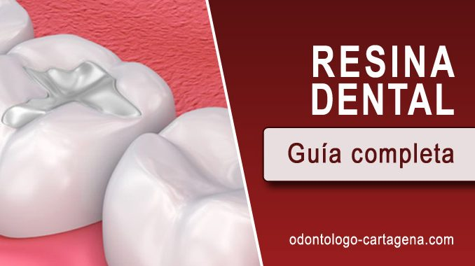 Resina dental Cartagena Coombia