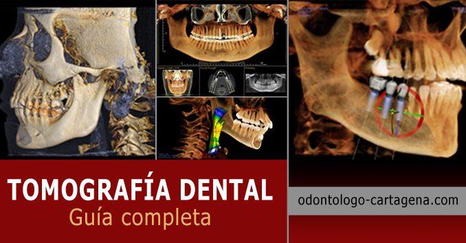 Tomografia dental en Cartagena