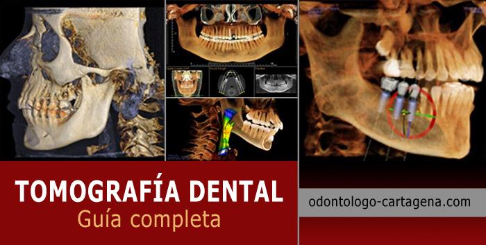 tomografia-dental