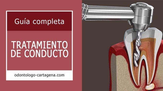 Tratamiento de conduction Cartagena Colombia