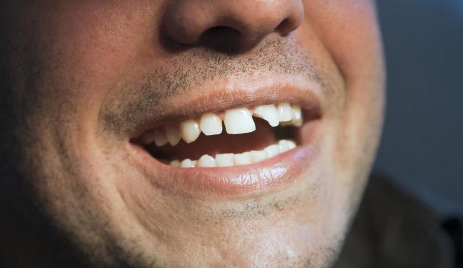 urgencias-dentales-2