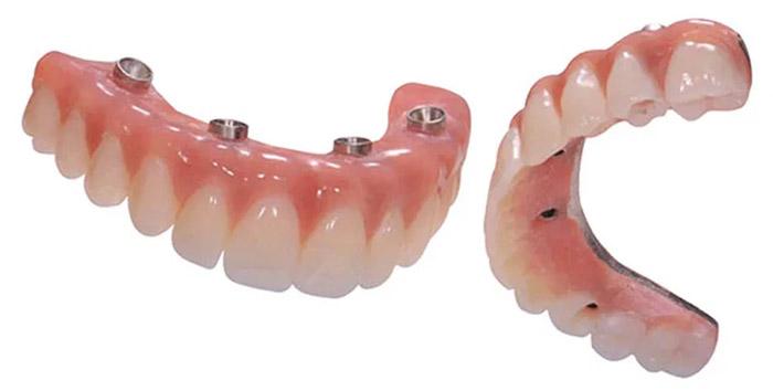 All-on-4 dientes acrílicos