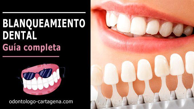Blanqueamiento dental Cartagena