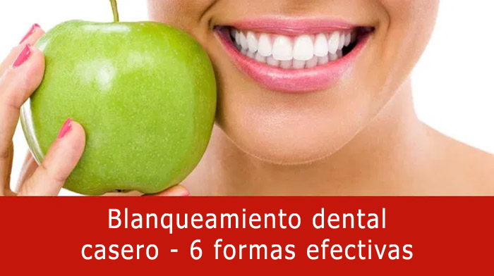 blanqueamiento-dental-casa
