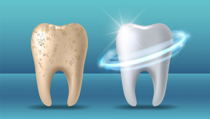Blanqueamiento dental porque